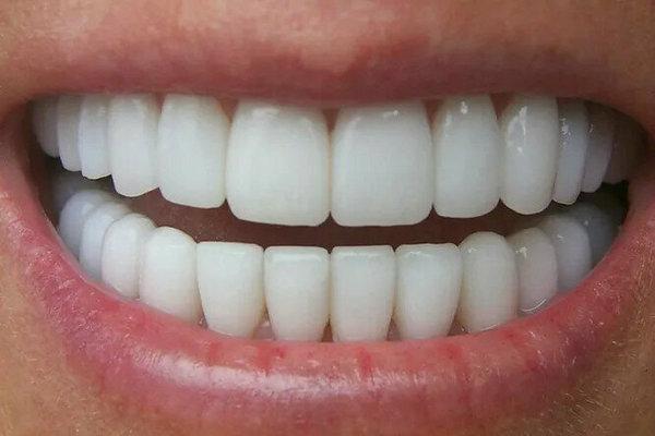 Конец пломбам: научный способ заставить зубы расти