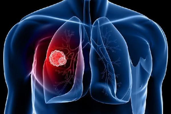 Украина планирует на 80% снизить заболеваемость туберкулезом до 2030 г. – гендиректор ЦОЗ