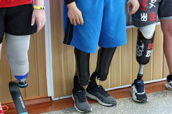 Правительство одобрило постановление о трансплантации конечностей бойцам АТО/ООС
